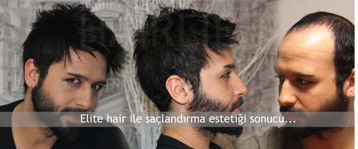 aprotez-saç_1