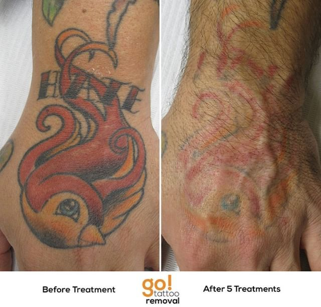 Giving This Client Their Hand Back About 80 There After 5 Treatments A Few More Will Still Be Needed But At This P Laser Tattoo Removal Tattoo Removal Tattoos