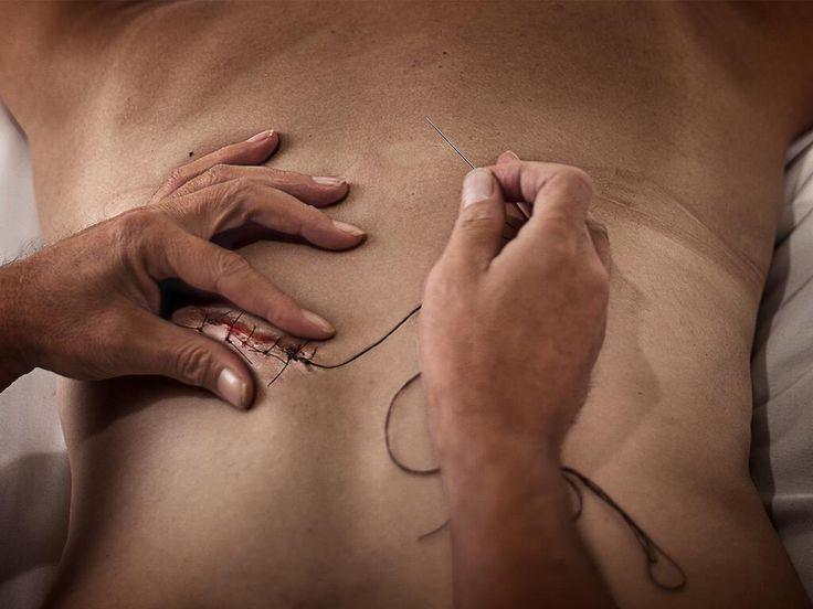 """""""Stitches"""",2012, İsmet Dogan, 120x150 cm  #art #artist #contemporary #contemporaryart #contemporaryartist #ismetdogan"""
