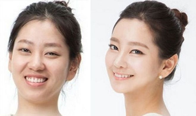 #koreanskincarebeforeandafter #plastic #surgery #korean #before