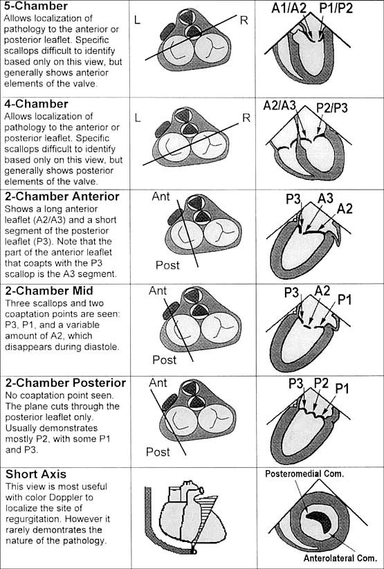 413 Best Images About Echocardiography On Pinterest