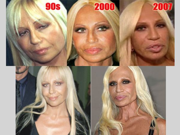If Successful Plastic Surgery Can Make Anyone Look Better