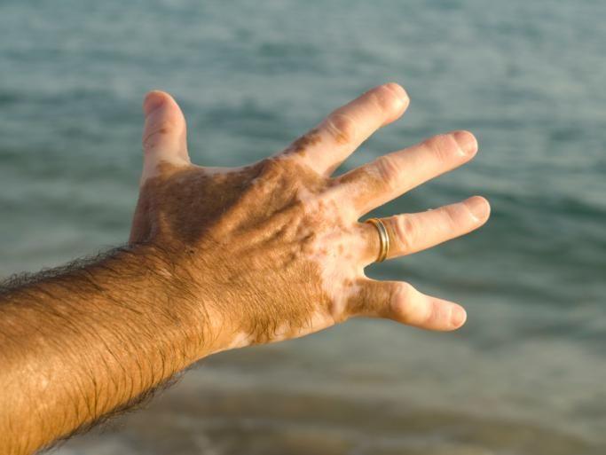 El vitiligo es una alteración de la pigmentación cutánea que afecta a 1 % de la población mundial. Las células que controlan la producción de la melanina se destruyen, lo que provoca que se formen manchas blancas en la piel. Estos parches también pueden aparecer en el