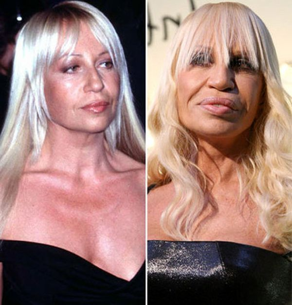 Celebrity Plastic Surgery   Celebrity-plastic-surgery-faces-before-after7