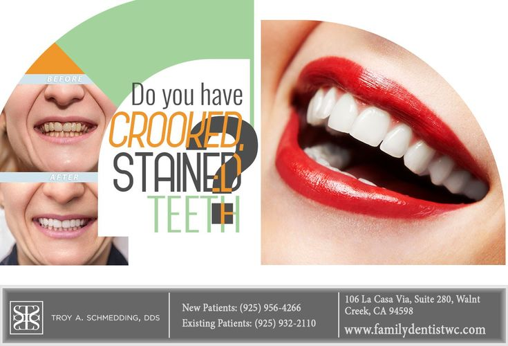 Dental veneers can cover up many of the imperfections that
