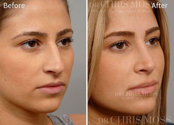 Surgery of the Nose (<b>Rhinoplasty</b>)