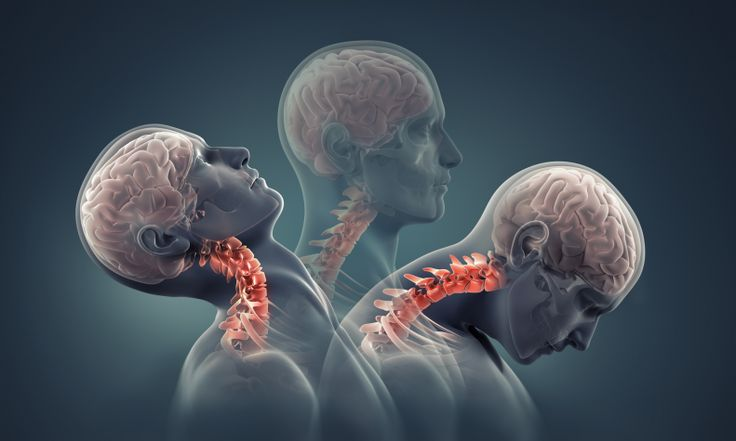 Proper posture - 9 Home Remedies for Sore Neck Muscles