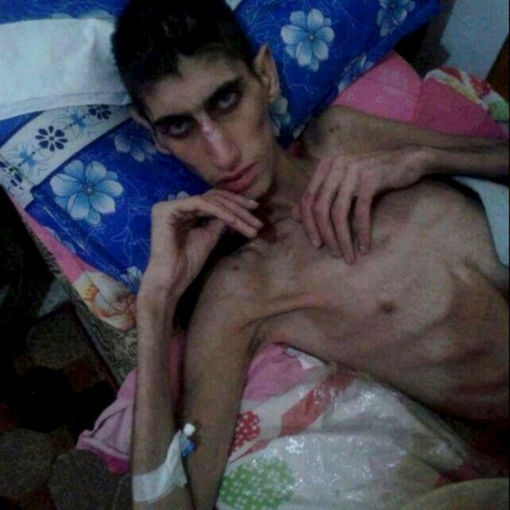 "Victims of War: 'Cowardly weapon' of starvation claims lives of Syrians cut off from world in Madaya, Syria. At least 23 people in blockaded town of Madaya have died, says aid group; residents say their plight being ignored. On Thursday, the government in Damascus finally agreed to allow international aid into Madaya amid warnings from the United Nations that international humanitarian law prohibits ""the targeting of civilians and their starvation"" as a weapon."