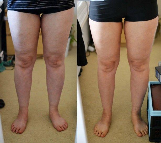 loose calf calves from weight loss