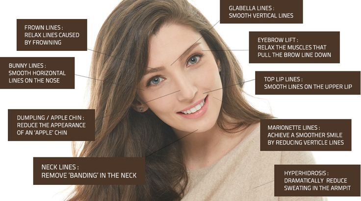Different areas for botox injection