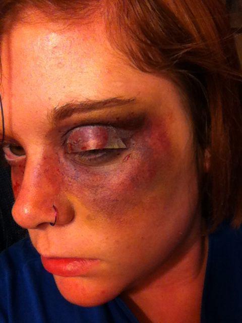 Fake bruise I made using eyeshadow.   Cool   Makeup trends ...
