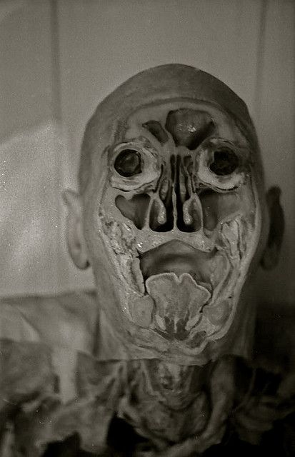 A plastinated torso and head, sectioned.  http://www.flickr.com/photos/scottwramsay/2837681682/