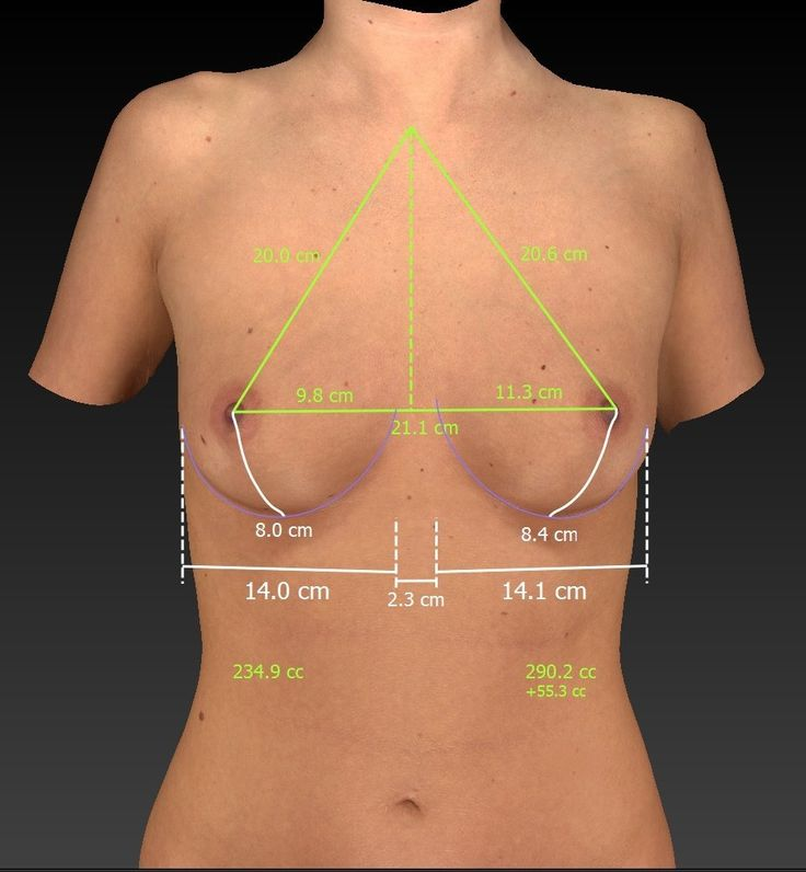 3D Imaging Includes An Assessment Of Breast Measurements -7034