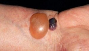 What is Bullous Pemphigiod - This Skin Disease Causes Blisters