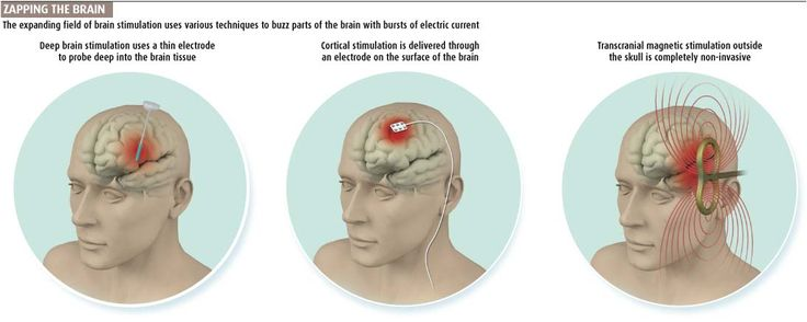 Zapping the brain