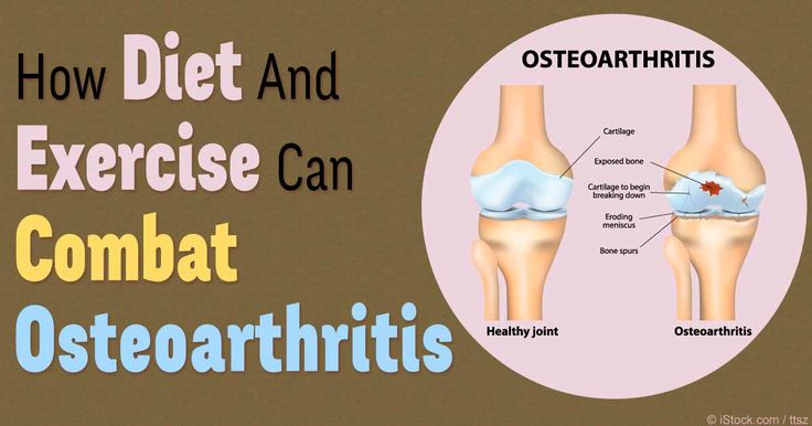Osteoarthritis is a degenerative form of arthritic joint disease; if you have it, exercise is absolutely crucial to your well-being. http://fitness.mercola.com/sites/fitness/archive/2016/01/08/hip-osteoarthritis-exercises.aspx