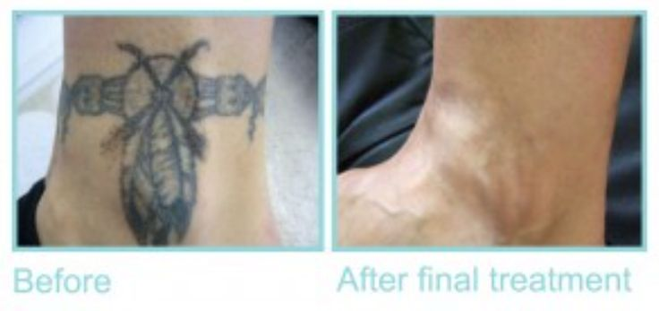 Check out our client after her final tattoo removal!!  To book PM or call us:  (07) 5636 1529