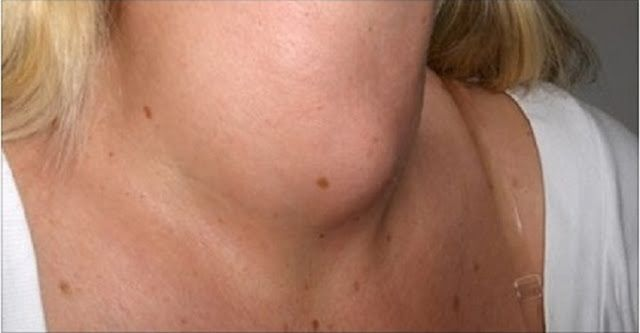 Remédio milagroso para estimular a tireoide e o metabolismo | Cura pela Natureza.com.br