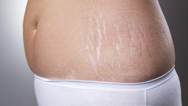 Navzdory obecně panujícímu názoru, že strie se objevují výhradně v důsledku váhového přírůstku, tkví skutečná příčina jejich vzniku v něčem jiném. Také nezmizí, když znovu zhubnete, a nemají je jen ženy...
