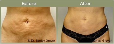 Dr. Sanjay Grover Velashape-Before and after