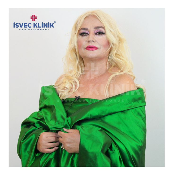 Yeşilçamın Afroditi oyuncu ve şarkıcı Banu Alkan'ın da tercihi İsveç Klinik oldu... 📲05320598185 #estetik #estetikcerrahi #burunestetiği #isvecklinik #ünlü #banualkan #liposuction #gögüs #göğüsdikleştirme #göğüsestetiği #yeşilçam #afrodit #istanbul #dolgu #botoks #güzellik #isveçklinik #almanya #güzellik