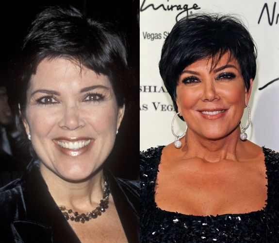 Chatter Busy: Kris Jenner Nose Job