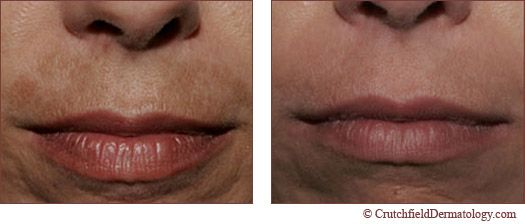 Above Upper Lip Melasma Photos Before And After All About