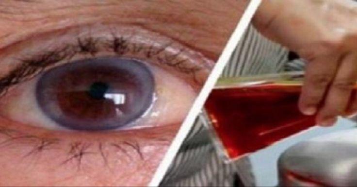 A szemproblémákkal küszködők tudják milyen borzalmas érzés, hogy csak szemüveggel láthatnak jól. Mindenki szeretne javítani a látásán, de sokan félnek a műtéti eljárásoktól. A természet csodái néha hatékonyabbak a legújabb eljárásoknál is! Rengetegen kipróbálták már ezt a módszert és a látásjavulást hamarosan érzékelték is! Mire van szükség? 1 gramm sáfrány[...]