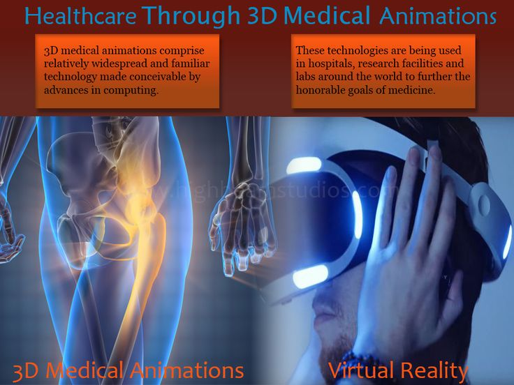 Professional 3D medical animations comprise relatively widespread and familiar technology made conceivable by advances in computing.