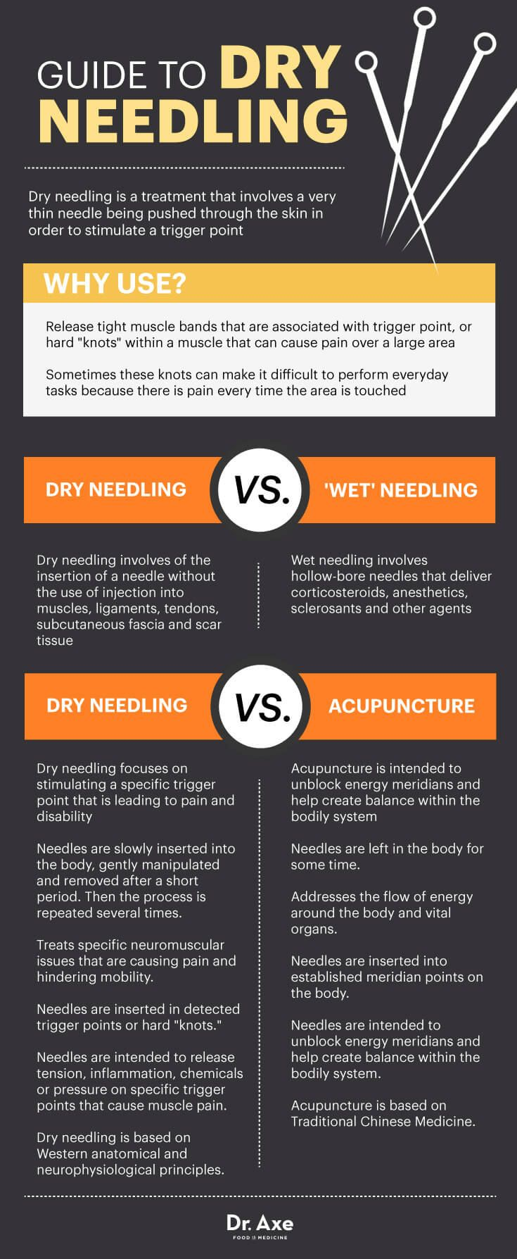 Guide to dry needling - Dr. Axe http://www.draxe.com #health #Holistic #natural