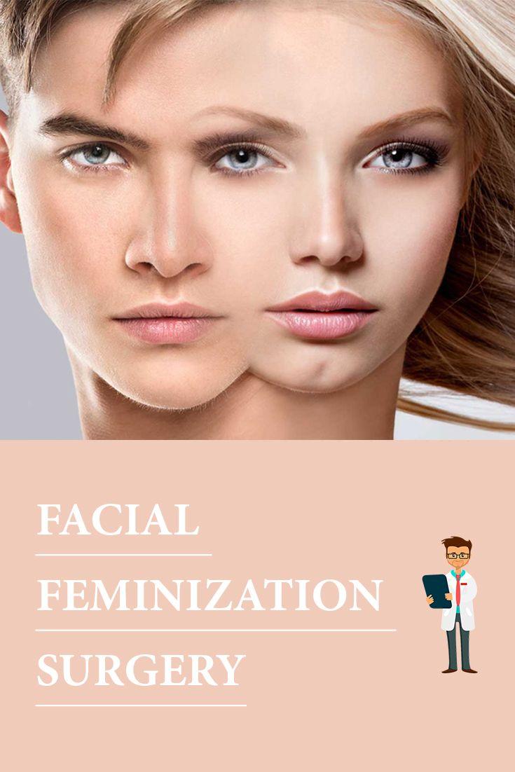 25+ best ideas about Facial feminization surgery on ...