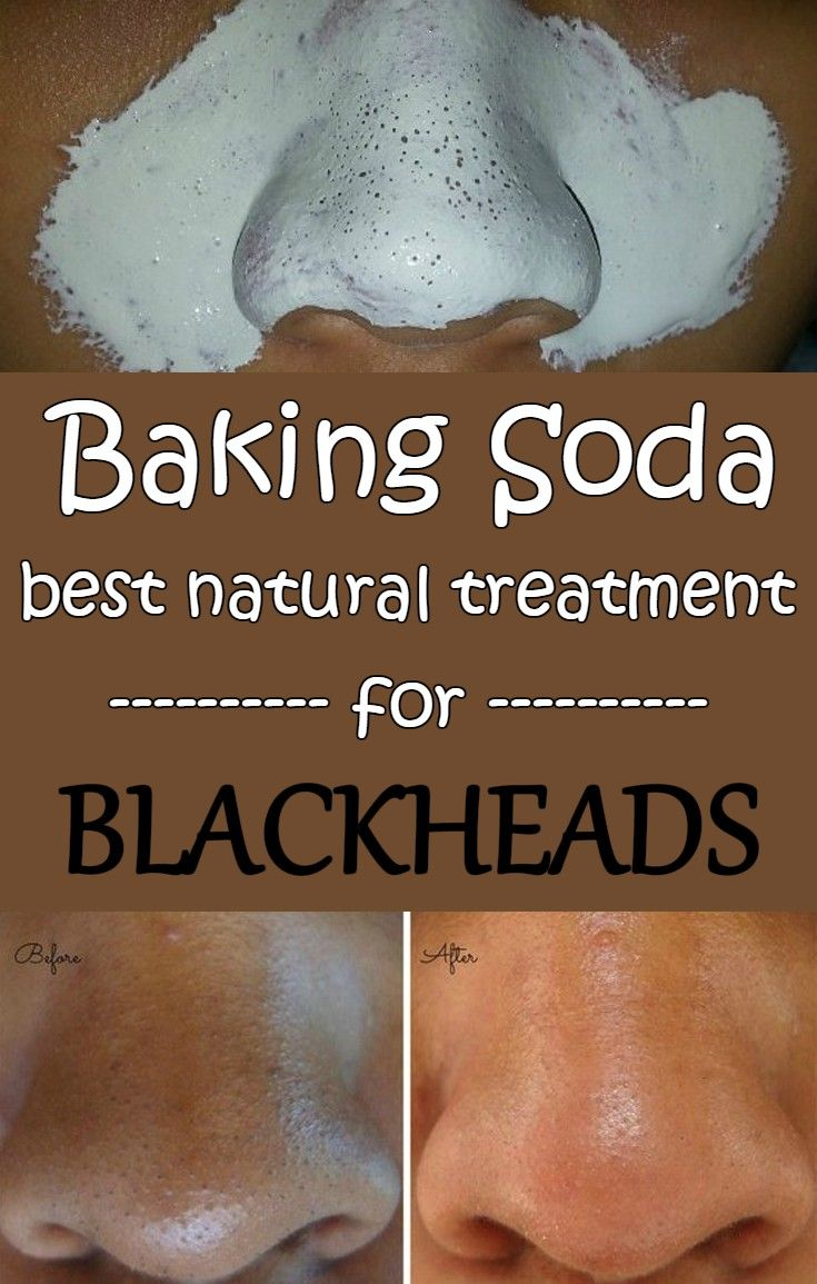 Baking soda - Best natural treatment for blackheads