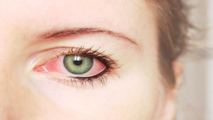 Seeking best home remedies for pink eye in toddlers and adults? Here are top 31 solutions for pink eye you are looking for.