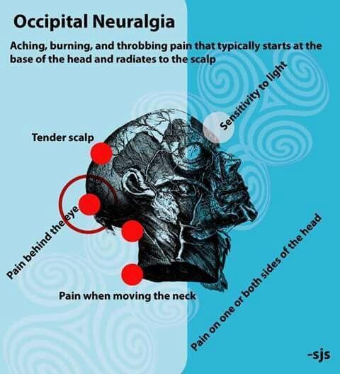 Occipital Neuralgia