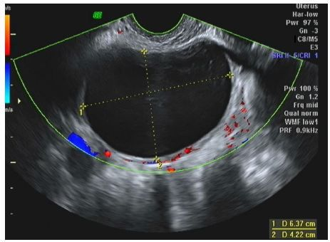 Figure 1 Transvaginal ultrasound in a 25-year-old woman.