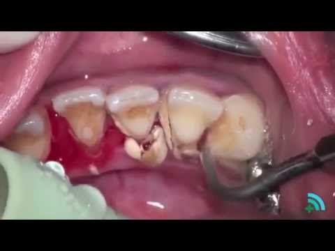Зубной камень - удаление в домашних условиях