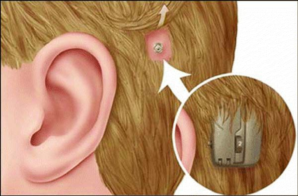 BAHA is an implantable hearing device used to treat hearing loss. The device works by directly stimulating the inner ear through the bone. BAHA is used to improve hearing in patients with chronic ear infections, congenital external auditory canal atresia or one-sided deafness who cannot benefit from regular hearing aids.