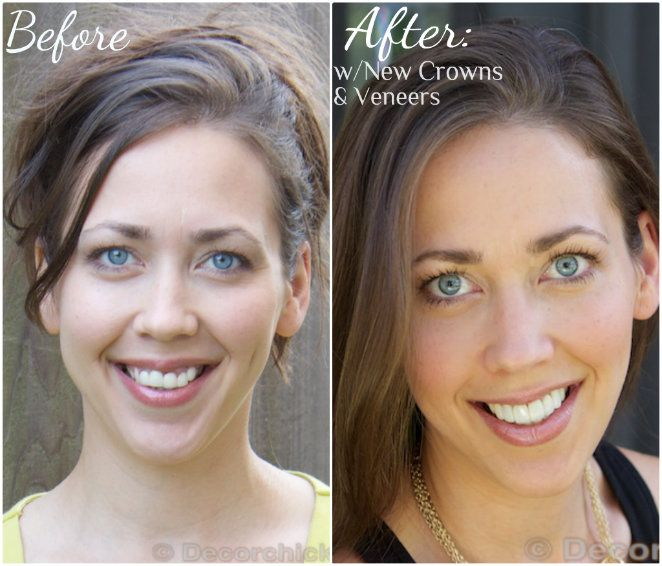 Crowns And Porcelain Veneers Before And After