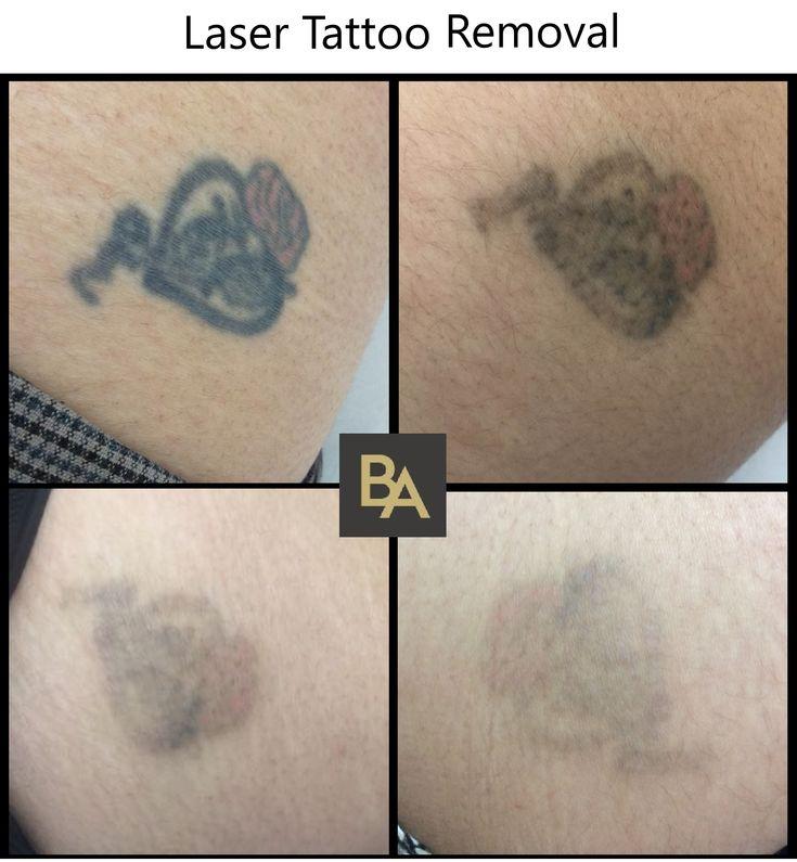 Laser tattoo removal laser tattoo tattoo removal