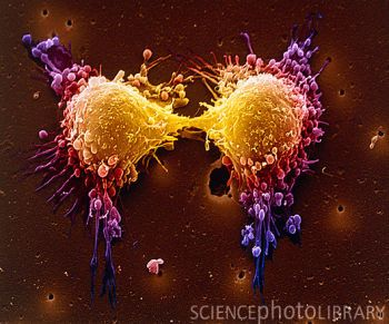"""Cancer cell division. Each little bump is a small part of the cell trying to divide again...this is why cancer is """"uncontrolled growth"""""""