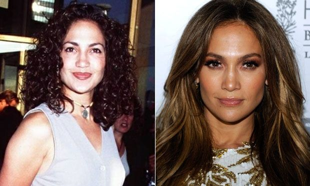 102 Best Plastic Surgery Some Good Some Bad Images On