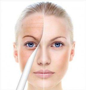 Comment lutter contre le relâchement de la peau