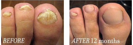 Fungal Nail | Laser Treatments Quick and Effective Nail Fungus Treatment with Laser Light We offer a revolutionary method of fungal nail infection treatment. Many people have suffered for years but now there is an effective treatment for nail fungus (onychomycosis). Whether it be on hands or toes our passion is in treating people with this unsightly fungus in a quick and effective way. With us you will be in the safest of hands.