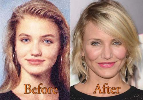 Cameron Diaz Plastic Surgery. #camerondiaz  #cosmeticsurgery   #plasticsurgery   #celebritysurgery #botox  #nosejob