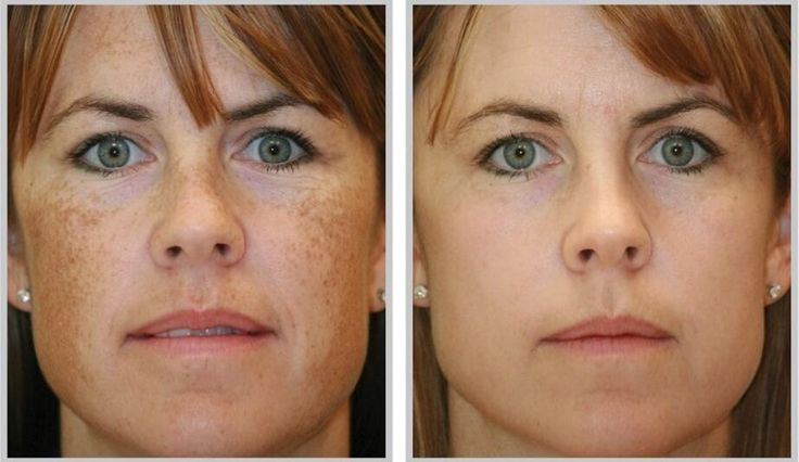 You have usually noticed that some people have brown or black spots on the skin or maybe you have them. These spots are also known as...