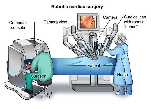12 Best Robotic Surgeon Valencia Images On Pinterest