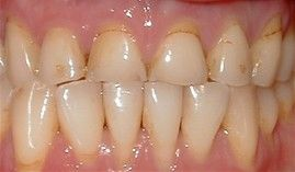 Porcelain Crowns -CEREC Before:  Patient needs Upper Arch Rehabilitation. Presents with Upper Anterior teeth that are stained, incisal edges (tooth edge) are worn down and chipped, and gumline recession is present.