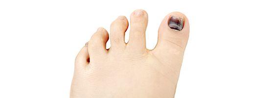 3 Common Toenail Problems
