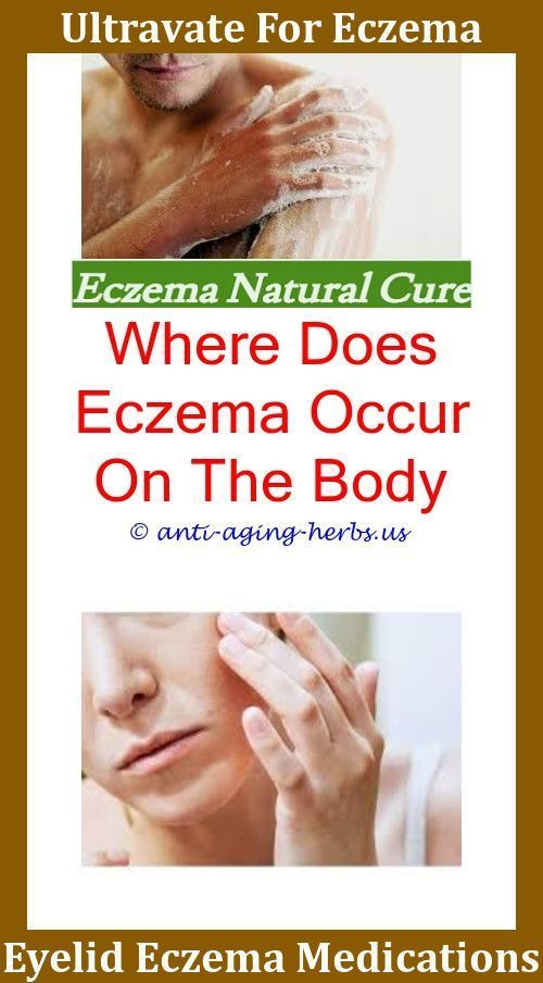 How long does homeopathy take to cure eczema