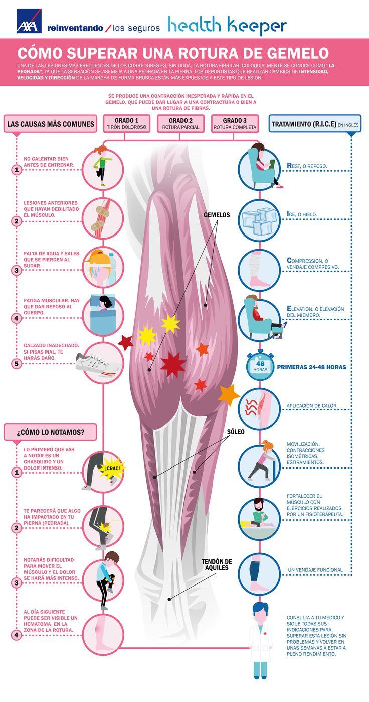 """Una de las más frecuentes lesiones de los corredores es, sin duda, la rotura fibrilar en el gemelo. La sensación que se nota es como si recibieran una pedrada en la pierna, de ahí que coloquialmente se le conozca como """"la pedrada"""". Con esta infografía AXA Health Keeper te enseñamos a identificar una rotura de gemelo, por qué se produce y qué se debe hacer (método RICE)."""